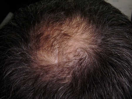 восстановление волос с помощью кофе / лечение облысения